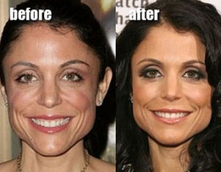 Bethenny Frankel Botox Injections