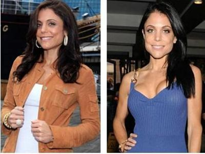 Bethenny Frankel Breast Augmentation