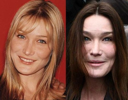 Carla Bruni Facelift and Botox