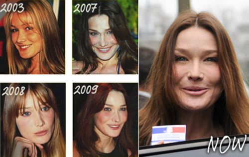 Carla Bruni Plastic Surgery Before & After