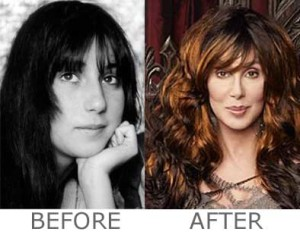 Cher Plastic Surgery: Details and Before After Photos