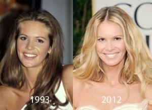Elle Macpherson Plastic Surgery: Successful Beauty Enhancement