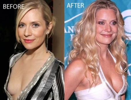 Emily Procter Plastic Surgery Before & After