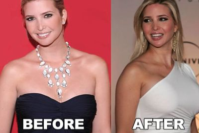 Ivanka Trump breast augmentation before & after