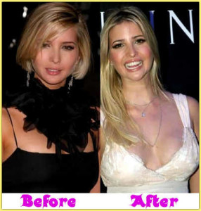 Ivanka Trump Plastic Surgery: Nose Job, Botox & Breast Implants