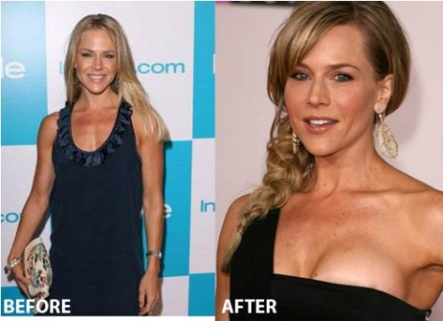 Julie Benz breast implants before and after