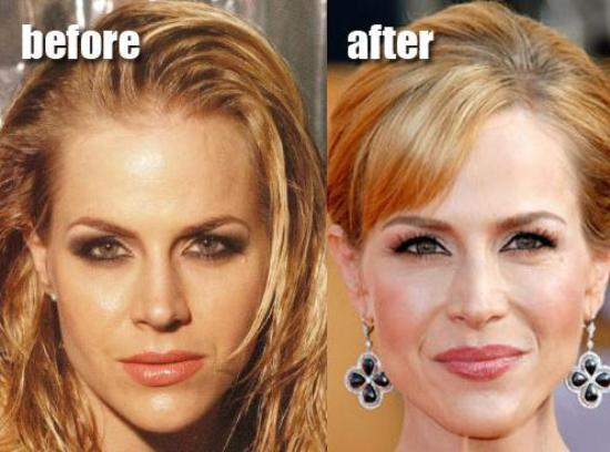 Julie Benz plastic surgery before after