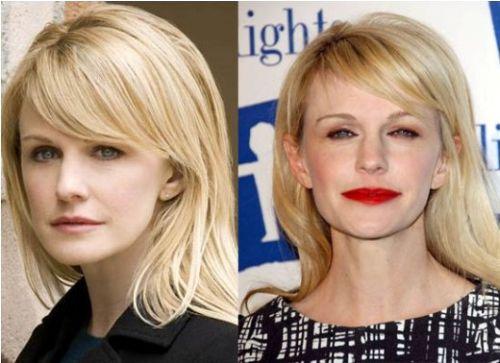 Kathryn Morris plastic surgery