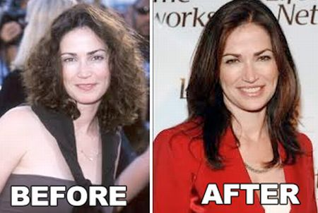 Kim Delaney plastic surgery before & after