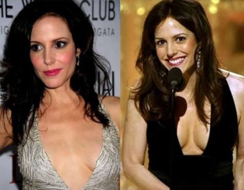 Mary Louise Parker-plastic surgery before after