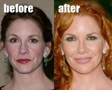 Melissa Gilbert plastic surgery before after