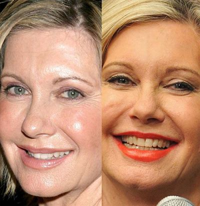 Olivia Newton john plastic surgery before after