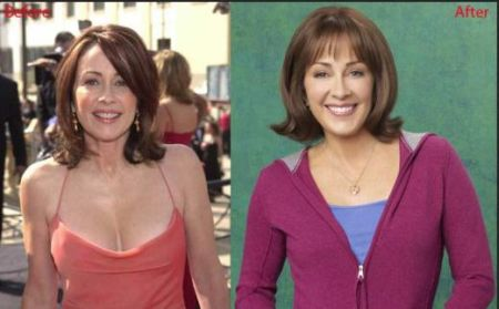 Patricia Heaton Plastic Surgery Before and After