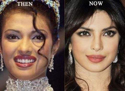 Priyanka Chopra Plastic Surgery Before After