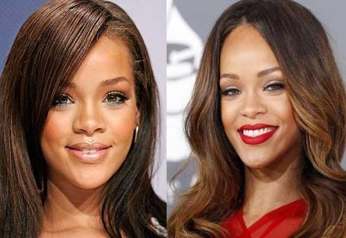 Rihanna Nose Job Before and AfterRihanna Before And After Nose Job