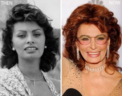 Sophia Loren plastic surgery before and after