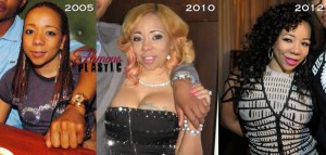 Tameka Cottle Plastic Surgery Results