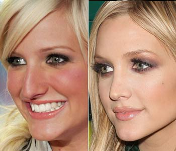 Ashlee Simpson nose job before & after
