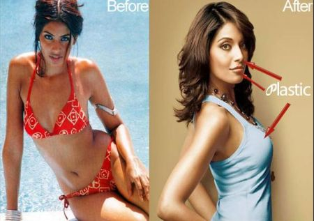 Bipasha Basu plastic surgery - Breast Implants, Rhinoplasty and Facials