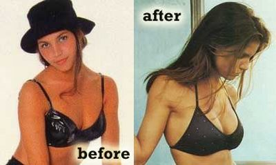 Charisma Carpenter plastic surgery before after