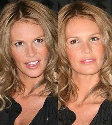 Elle Macpherson plastic surgery