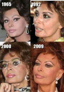 Sophia Loren plastic surgery results