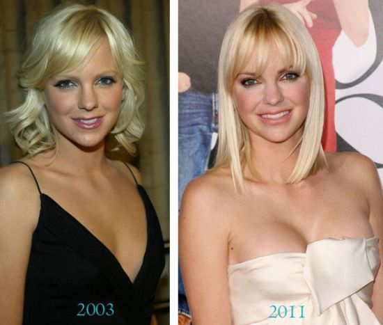 Anna Faris breast implants before after