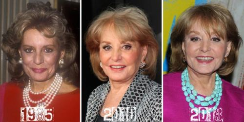 Barbara Walters plastic surgery photo