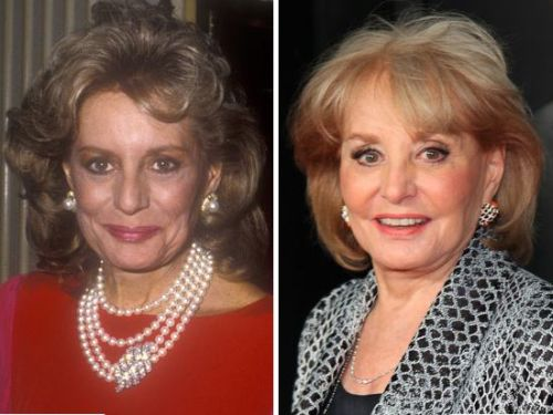 Barbara Walters plastic surgery before and after
