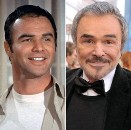Burt Reynolds Botox Treatment