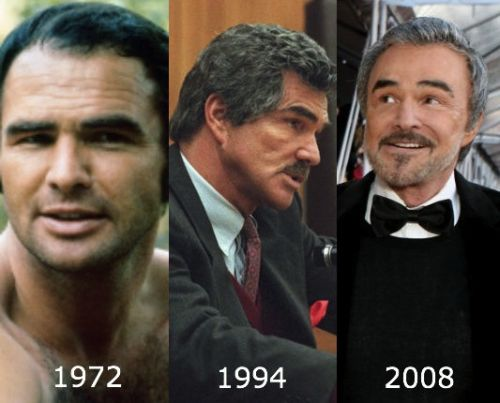 Burt Reynolds plastic surgery photo