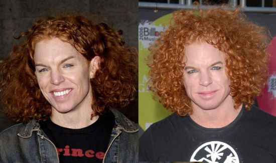 Carrot Top plastic surgery before after