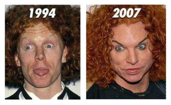 Carrot Top plastic surgery gone bad!