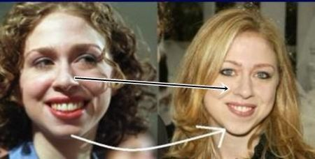 Chelsea Clinton nose job and cheek implants