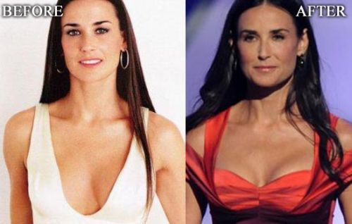 Demi Moore breast implants before after