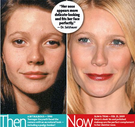 Gwyneth Paltrow nose job