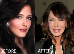 Hunter Tylo Plastic Surgery – A Surgical Mistake