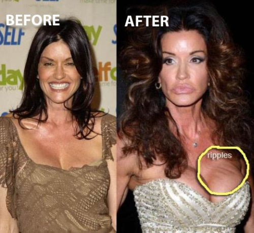 Janice Dickinson Plastic Surgery Before After