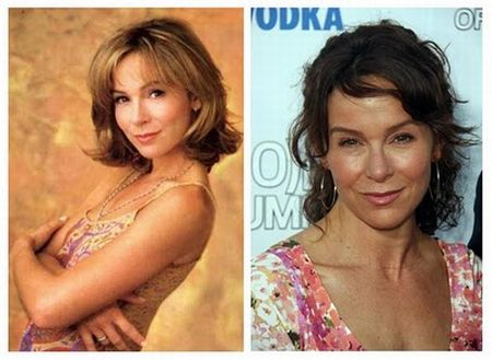 Jennifer Grey nose job gone wrong!