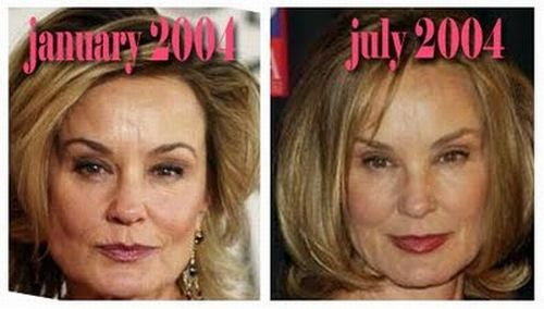 Jessica Lange plastic surgery before and after
