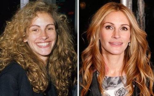 Julia Roberts plastic surgery before and after nose job