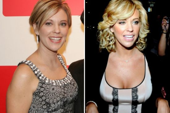 Kate Gosselin breast implants before after