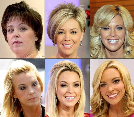 Kate Gosselin plastic surgery procedures