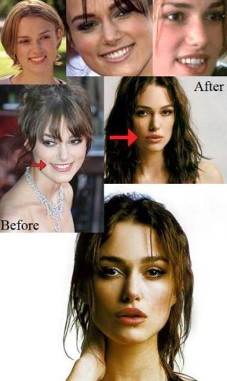 Keira Knightley plastic surgery procedures