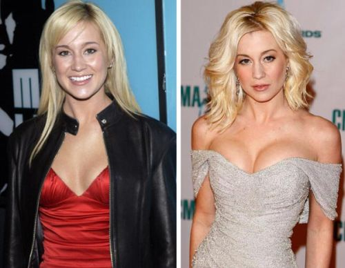 Kellie Pickler breast implants before after
