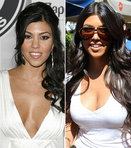 Kourtney Kardashian breast implants before and after