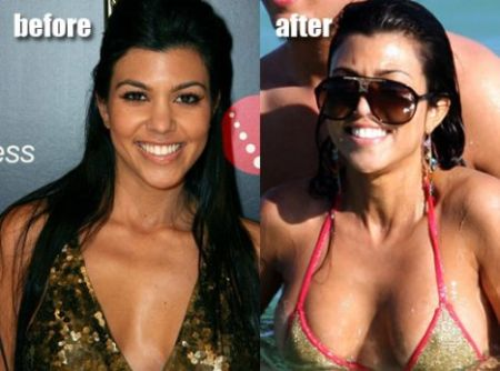 Kourtney Kardashian plastic surgery before after
