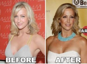 Lara Spencer Plastic Surgery – Secret of the Natural Beauty