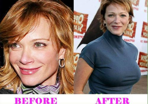 Lauren Holly plastic surgery before after
