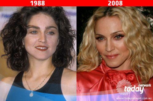 Madonna's cosmetic transformation